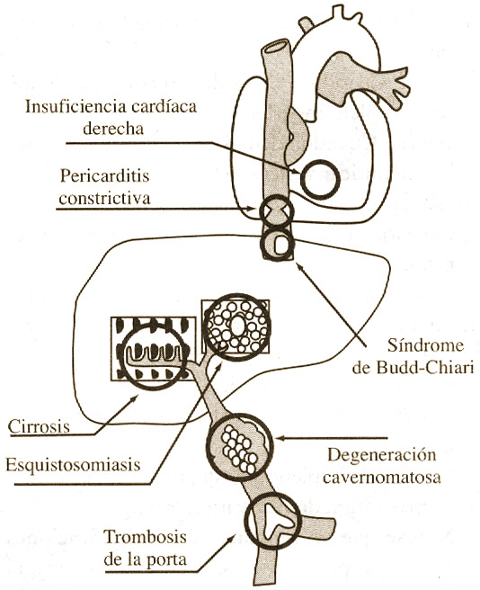 causas hipertension portal