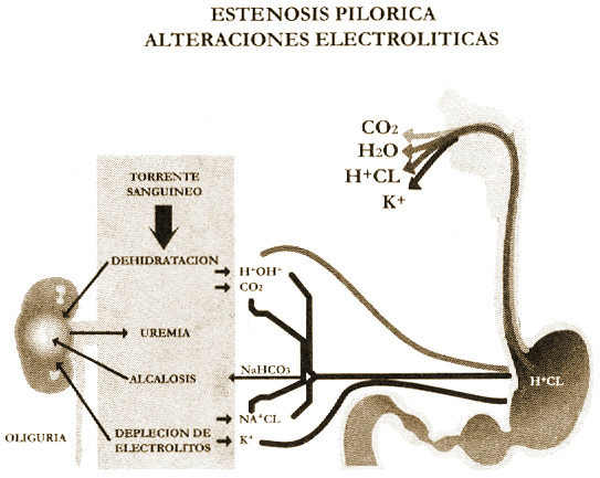 fig.4 obstruccion pilorica